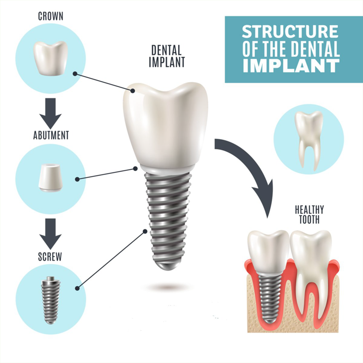 Structure of Dental Implants